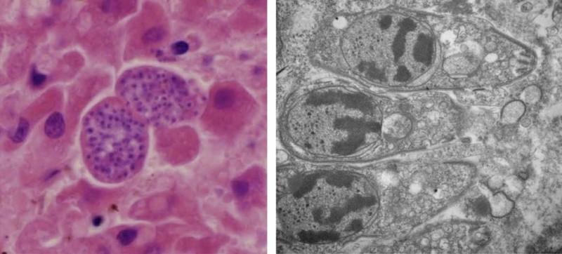 Infecções por S. pinnipedi (em roxo, à esquerda; em cinza escuro, à direita) em fígados de focas-cinzentas, nos quais se observa uma inflamação. Crédito: Dr. Pierre Yves-Daoust
