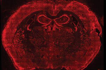 No procedimento estudado, os pesquisadores fixam milhares de RNAs em suas posições nas células, tecidos, órgãos ou embriões. Acima, RNAs marcados por tinta vermelha no cérebro de um rato. Imagem: HMS e  Wyss Institute
