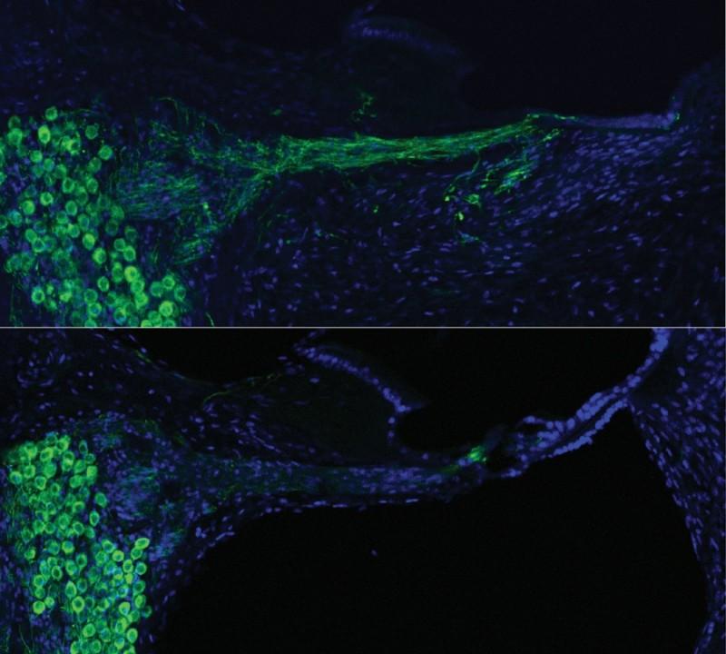 Nervo coclear de um porquinho-da-índia reconstruído (acima e ao centro) a partir da terapia genética, em comparação com a situação pré-tratamento (abaixo). Crédito: UNSW Australia Translational Neuroscience Facility, Jeremy Pinyon e Gary Housley