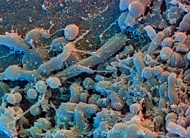 Placa bacteriana dental. Crédito: David Scharf; Corbis