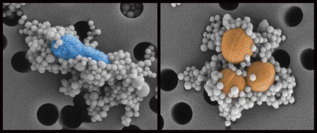 Nanoesferas magnéticas revestidas por uma proteína encontrada no corpo humano se atam a bactérias E. coli (esq.) e S. aureus (dir.), removendo-as do sangue. Crédito: Wyss Institute; Universidade Harvard