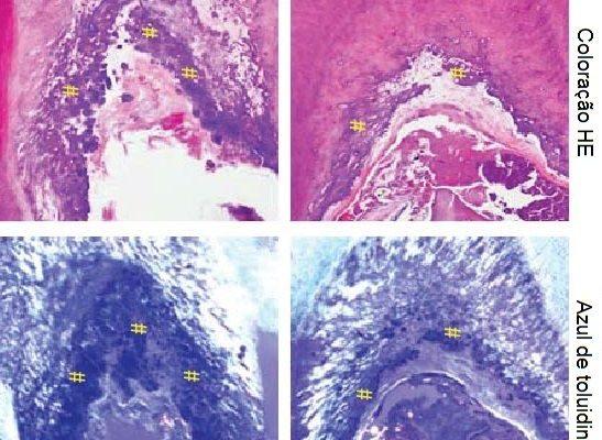 Dentina células-tronco