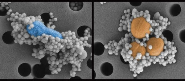 Nanoesferas magnéticas