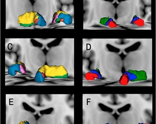 Saúde: Portugueses lideram descoberta de subsestruturas cerebrais