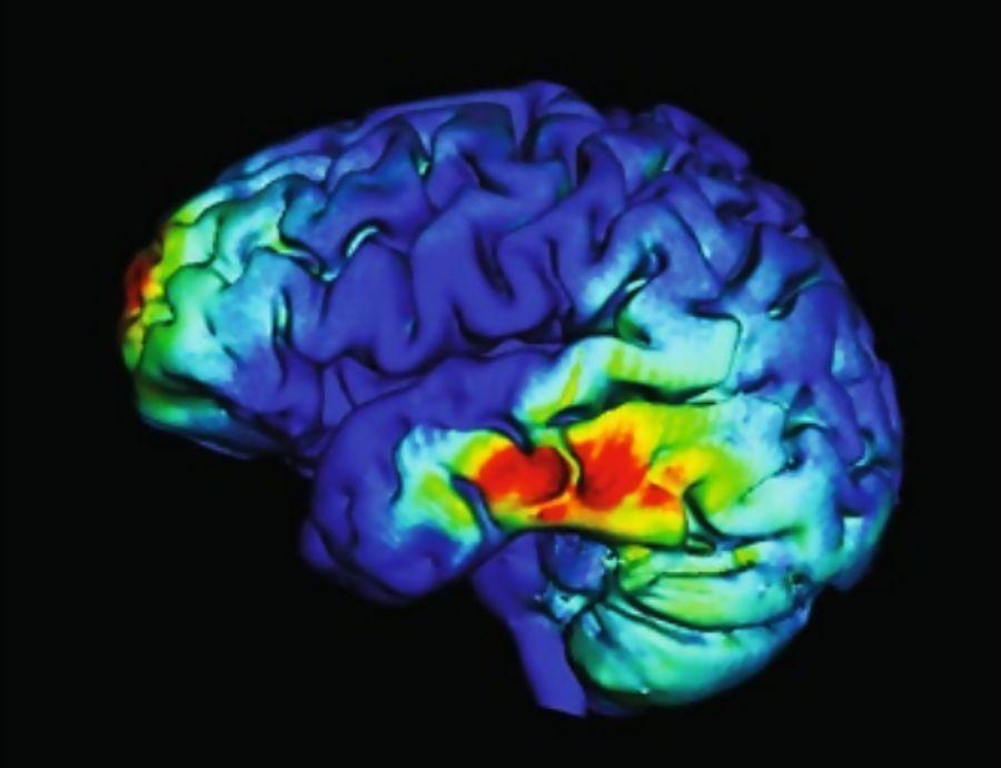Terapia não-invasiva utiliza ondas cerebrais sincrônicas para melhorar a memória